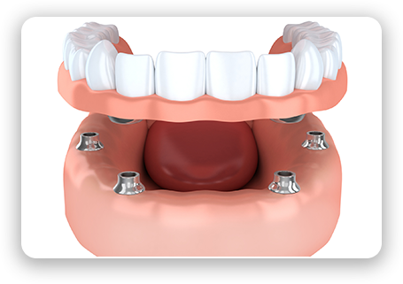 graphic of all-on-four dental implants and overdentures