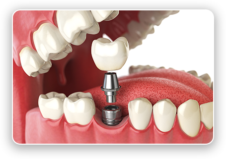 graphic of single dental implant post, attachment, and restoration being placed in back of mouth