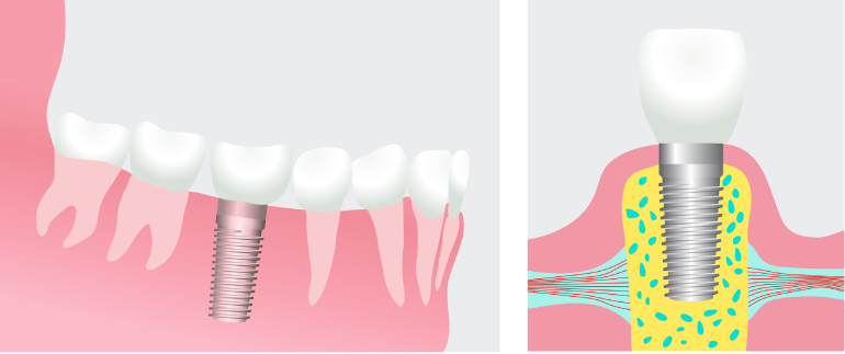 Artistic rendering of a dental implant showing the implant fused in the bone on the left and the implant topped with a crown on the right